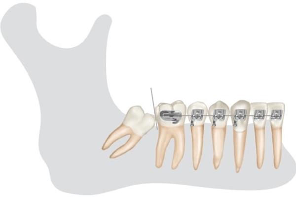 Utilização de braço de força para desimpactação de segundo molar inferior